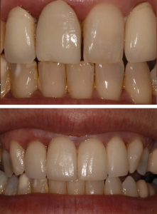 crown_veneers