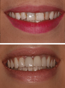 private_veneers