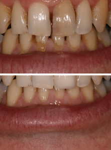 whitening_privatecrown